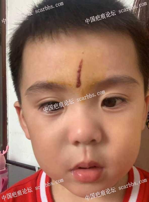 小孩受伤20多天,当时没有处理好,现在有红印疤痕
