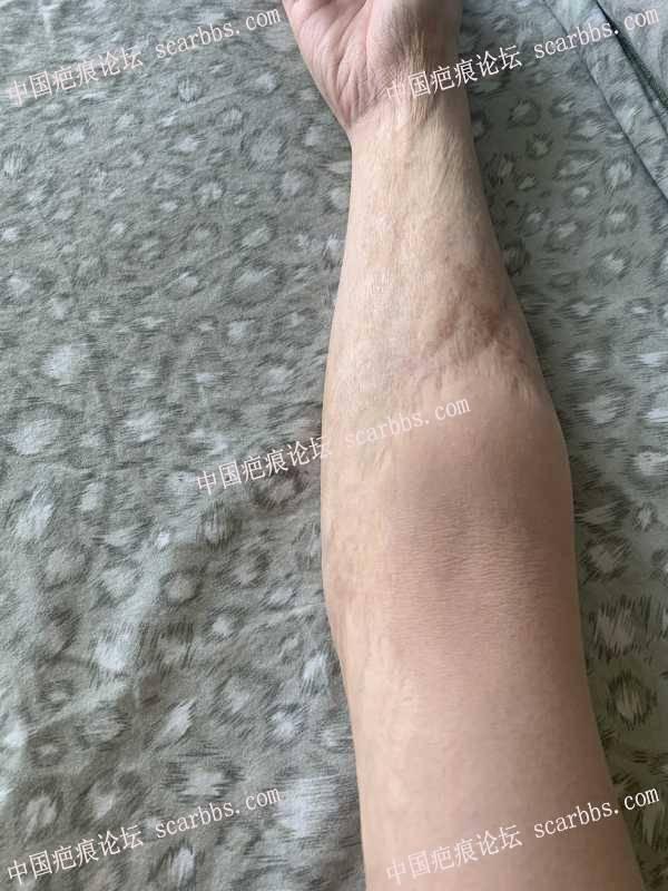 小的时候胳膊烫的大面积疤痕,20多年了,还有救嘛?
