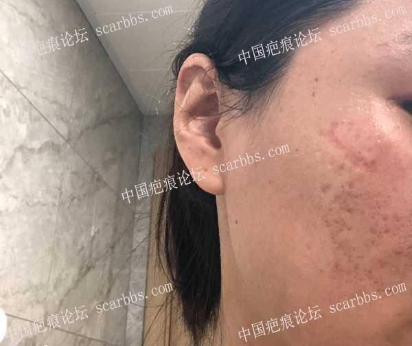 上海九院面部凹陷缝针疤痕切除20210627