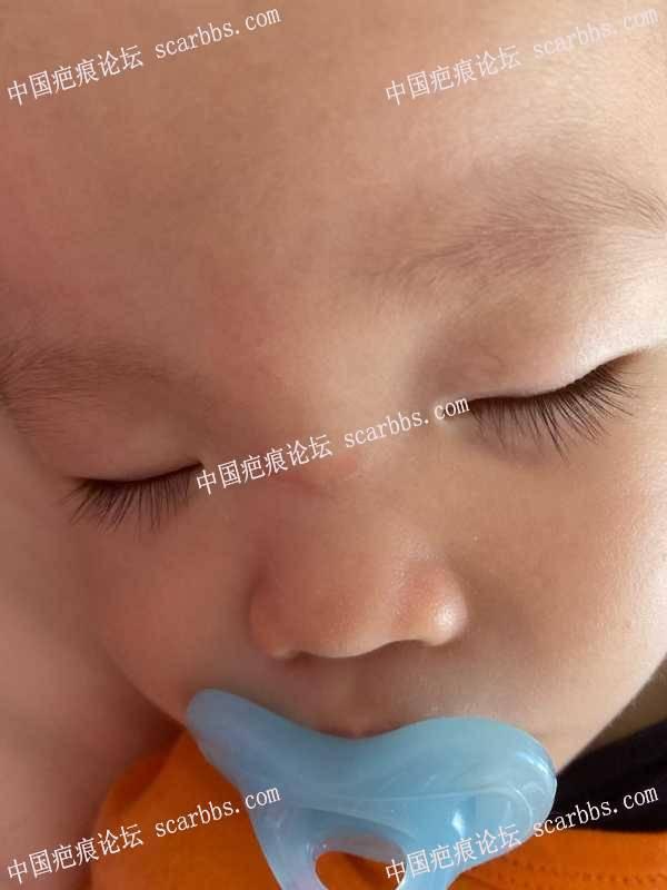 宝贝鼻梁磕伤疤痕