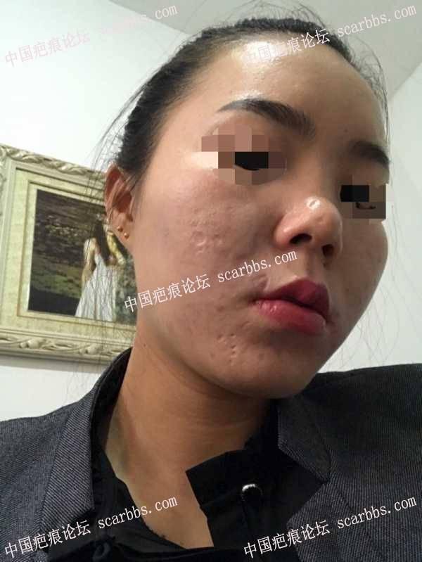 脸上多处痘坑,治疗后这样的效果,你满意吗?