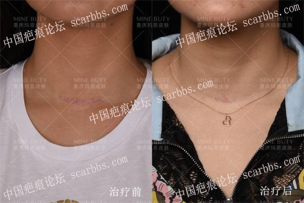 甲状腺手术疤痕