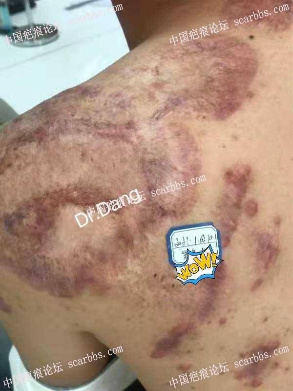 增生性疤痕的治疗,原位修复,不切除,不手术。