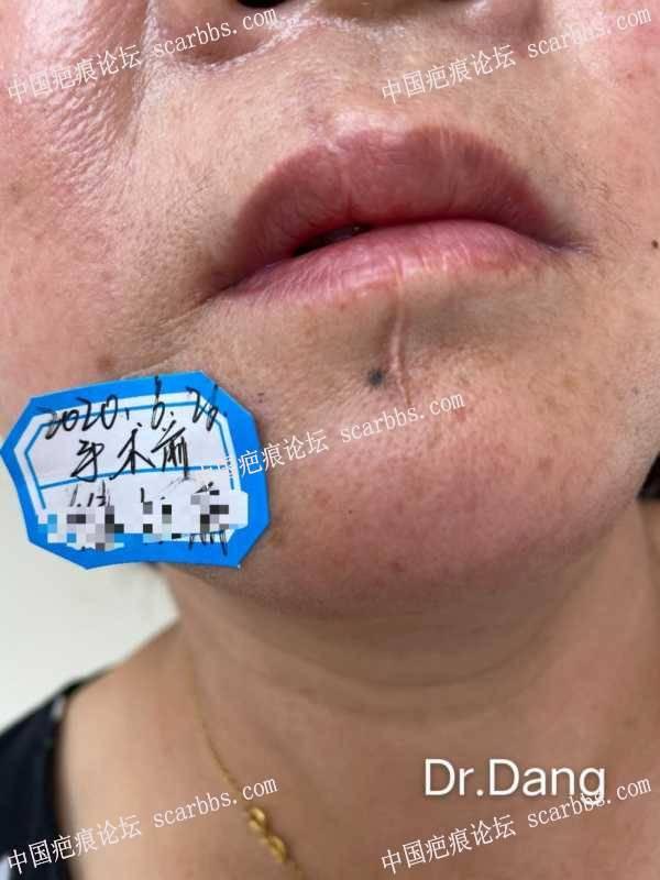 口周疤痕的治疗难点分析