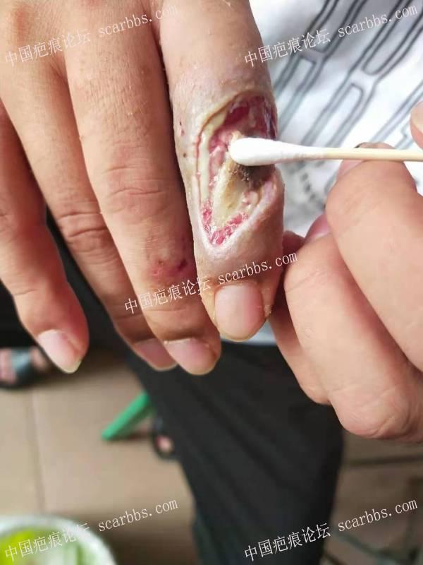 李高令2021年又接治一个电击伤患者(潍坊高密)
