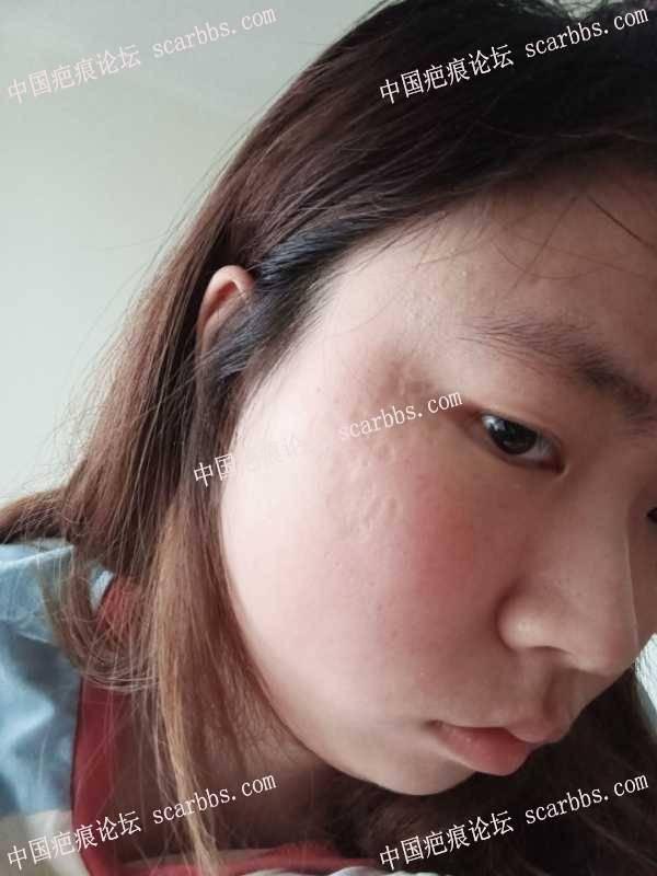 脸上多处浅凹陷疤痕怎么治