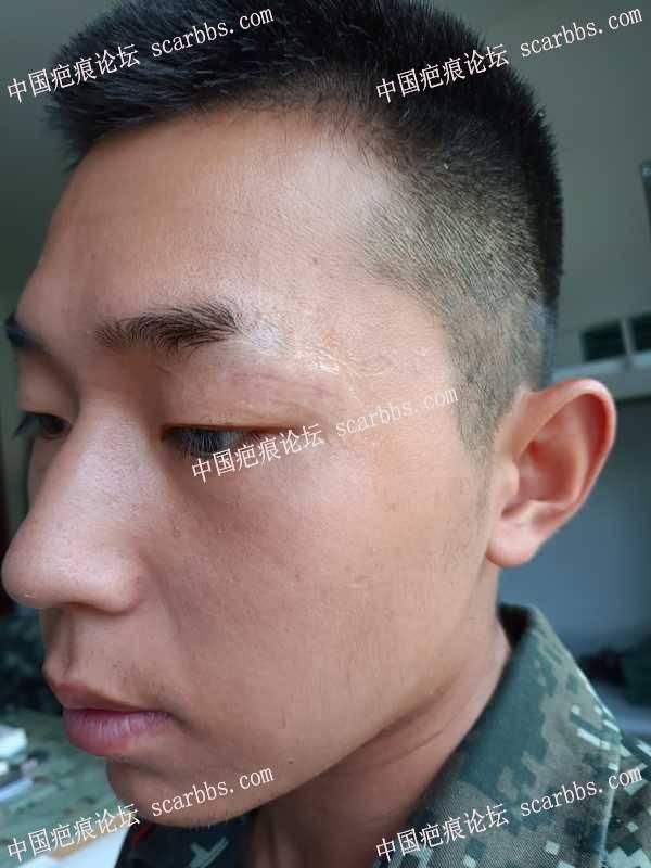 眉毛旁的伤口大家看看,这样贴美皮护会不会影响疤痕凹陷不平?