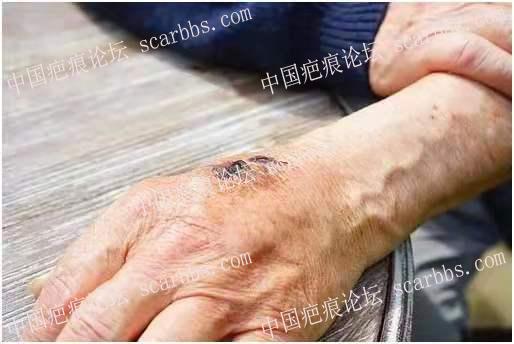 这3种疤痕,可能是潜在的癌症,快看你身上有没有!