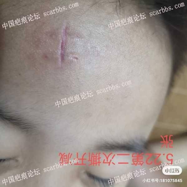 额头受伤二个月了,伤口宽,不退红,求助