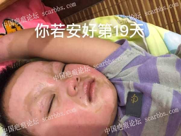 宝宝被煤气喷伤20天了