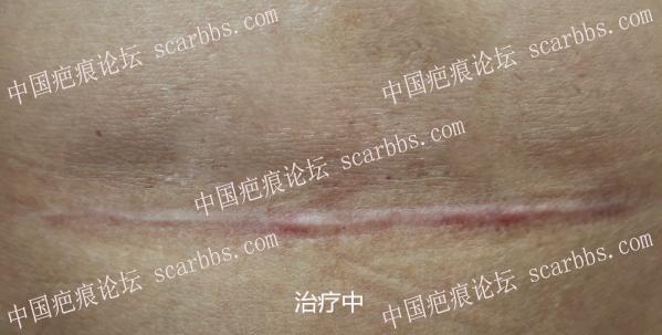 分享剖腹产疤痕修复效果