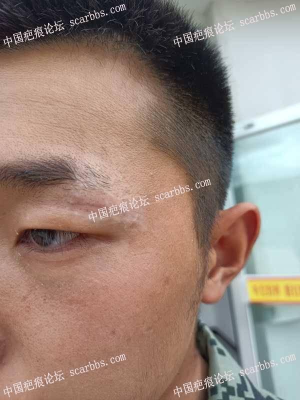 眼皮处疤痕祛疤第50天,感觉还有凹