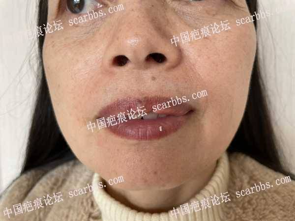 上嘴唇凹陷修复