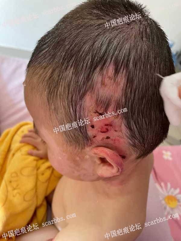 孩子烫伤大面积植皮现在这种情况应该怎么治疗