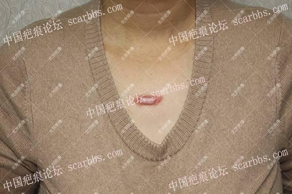 河南卢女士前胸疤痕疙瘩治疗案例
