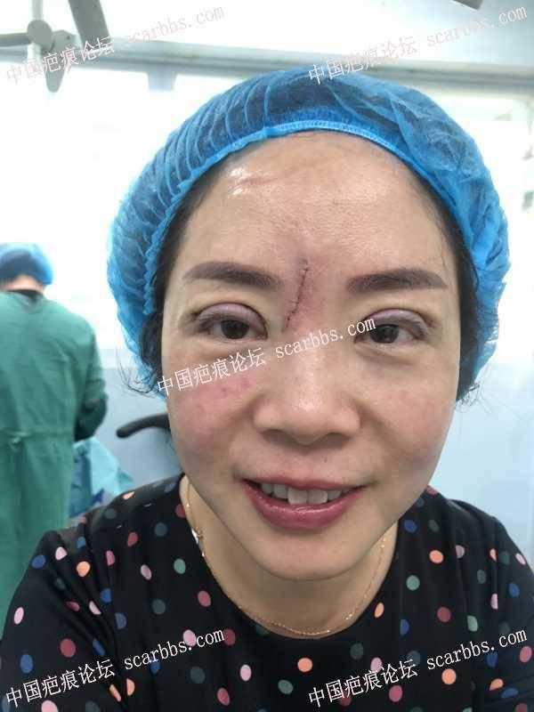 额部切缝疤痕修复+双眼皮修复