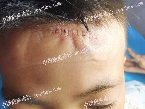 孩子额头疤痕做了手术精细切缝,期待有个好结果