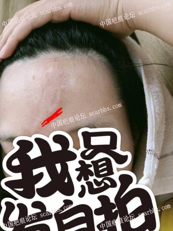 2021年6.23。在上海翡立思,陈立彬医生做的额头疤痕切除手术