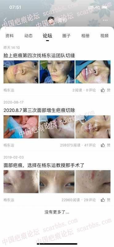 脸上疤痕第四次找杨东运团队切缝