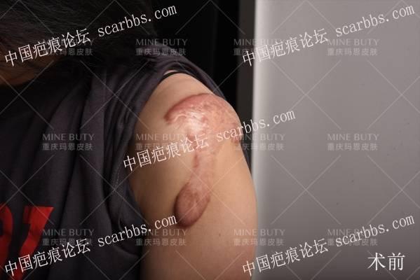 大面积疤痕疙瘩该如何手术?
