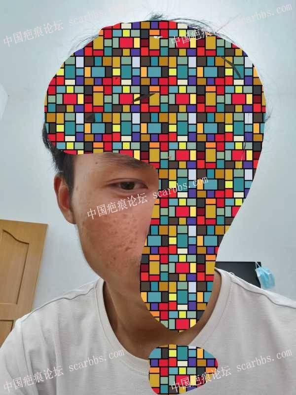 看脸的时代,我这20多年的老疤痕还有救吗?