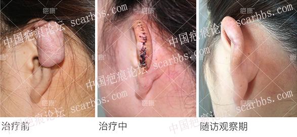 山东陈女士左耳4年疤痕疙瘩治疗案例