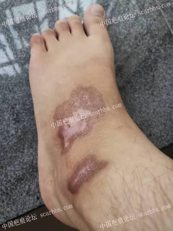 骑车摔伤后留下黑色疤痕