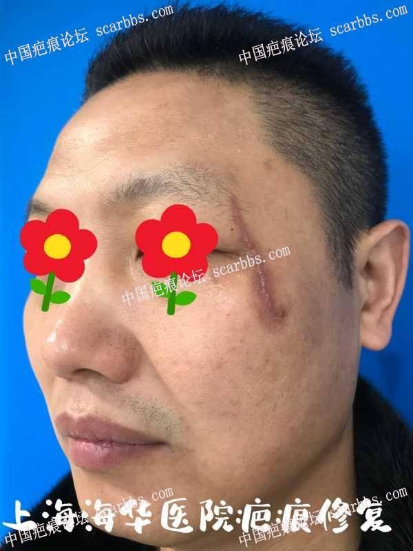 坚持不懈!和疤说拜拜!送你一朵小红花!