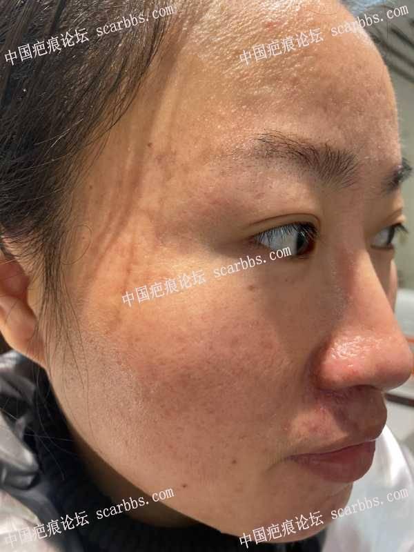 面部痘坑修复