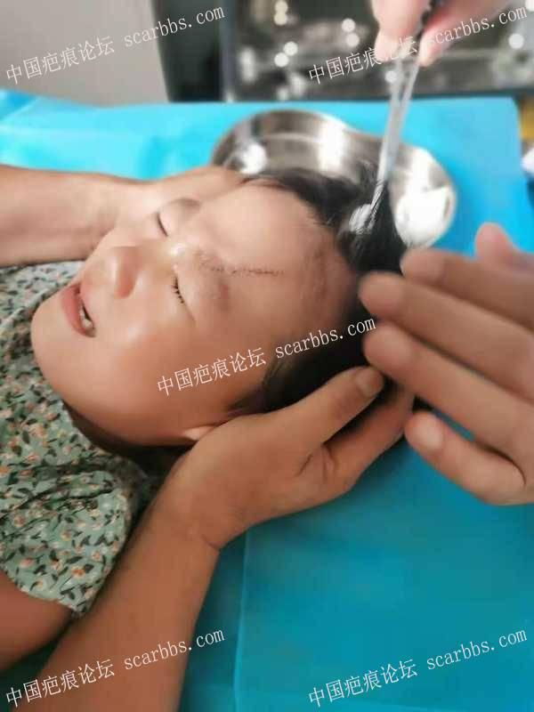 三岁宝宝额头刀伤