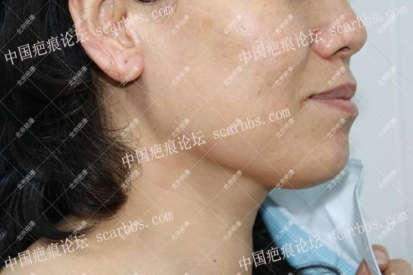 【治疗案例】内蒙高女士颌下疤痕疙瘩