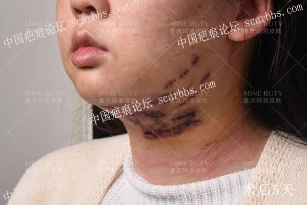 疤痕疙瘩微创核切手术
