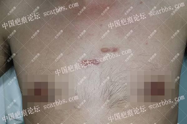 黑龙江韩先生前胸5年疤痕疙瘩治疗案例