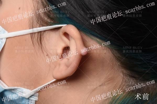 打耳洞形成的疤痕疙瘩!