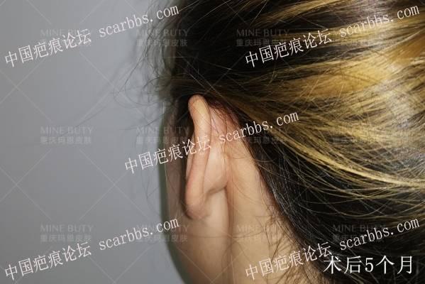 打耳洞形成的疤痕疙瘩! 打耳洞疤痕,疤痕疙瘩,瘢痕疙瘩治疗