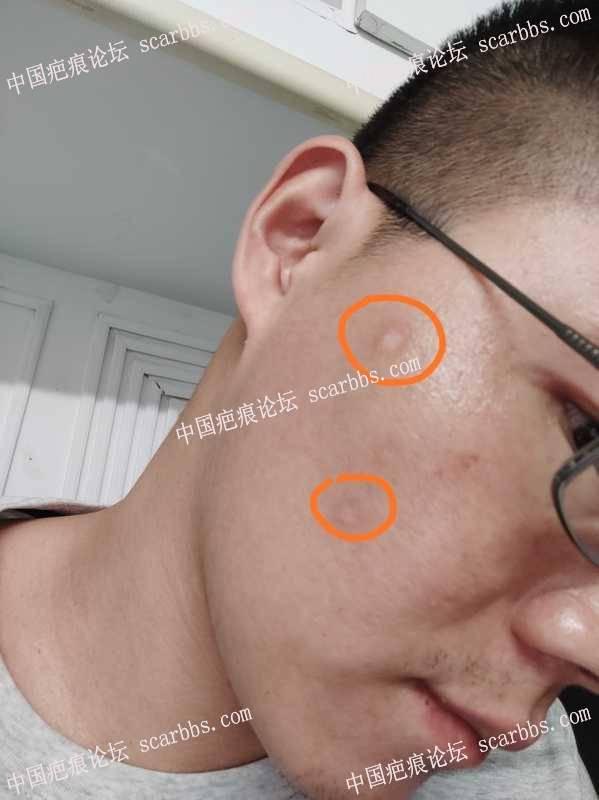 脸上痘坑切缝手术治疗记录及反馈 痘坑疤痕,脸上疤痕,痘坑切缝