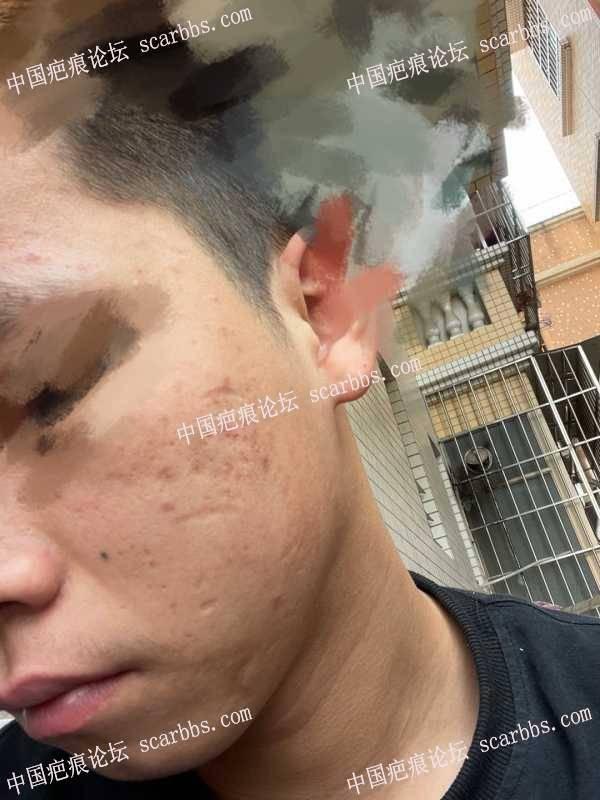 脸上比较严重的凹陷疤痕怎么治疗