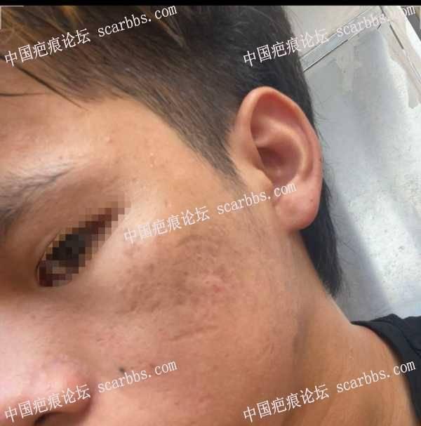 脸上比较严重的凹陷疤痕怎么治疗 脸上疤痕,凹陷疤痕,疤痕治疗