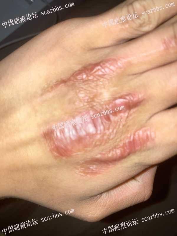 手背被夹伤,造成增生疤痕,疤友们还有救吗? 疤痕增生,手背疤痕,疤痕治疗