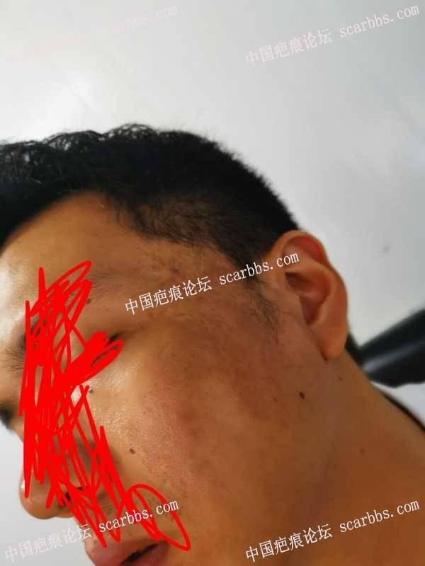 面部二十几年的烫伤疤痕!!
