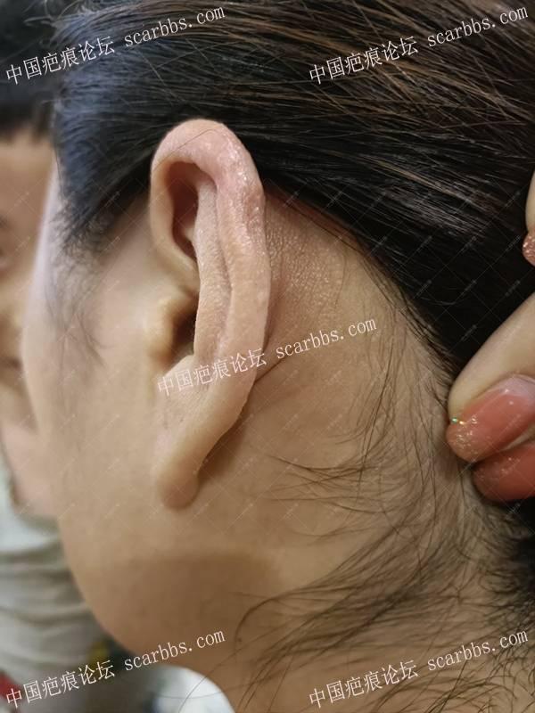 山西李女士耳朵6年疤痕疙瘩治疗案例