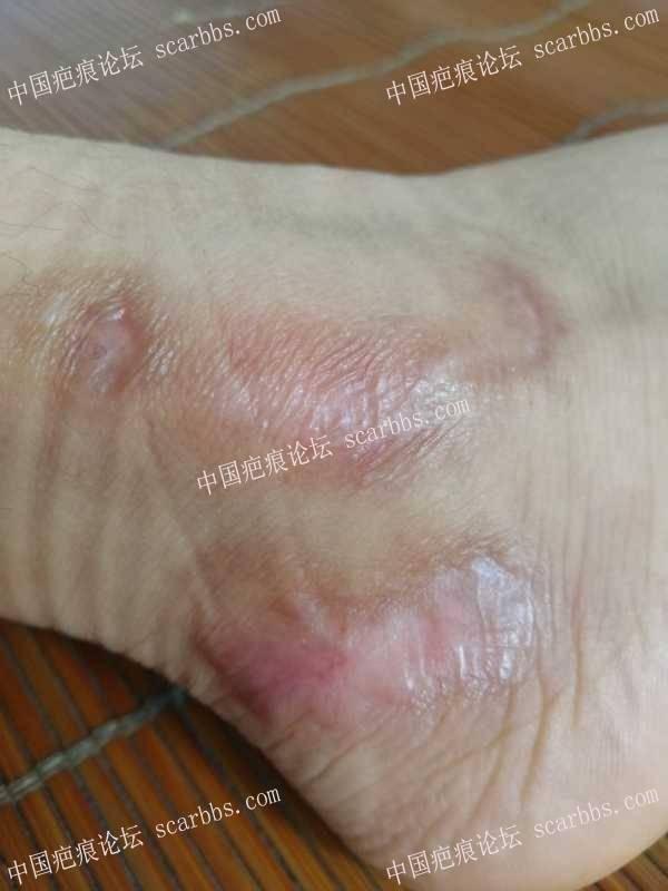 腿部外伤疤痕,是不是增生了