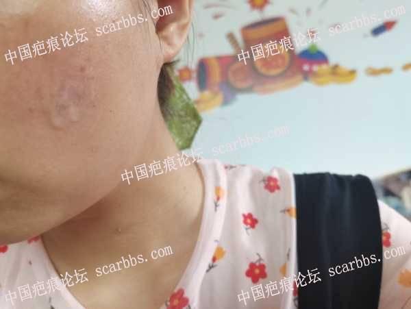 面部疤痕第三次点阵激光