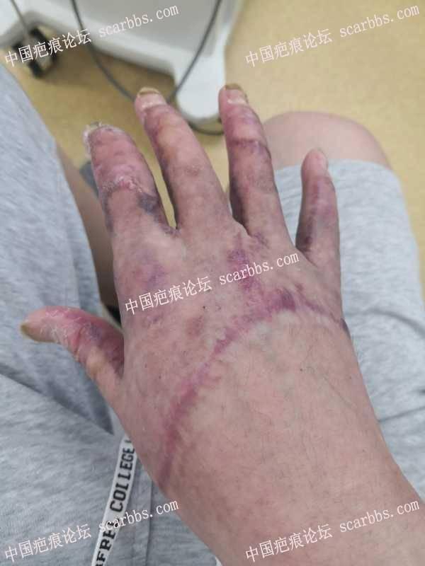 双手被电火花灼伤,双手三度烧伤,面部浅二度烧伤。