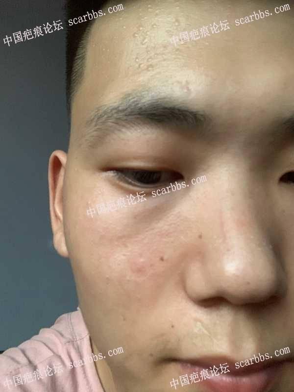 面部五年前烫伤形成疤痕