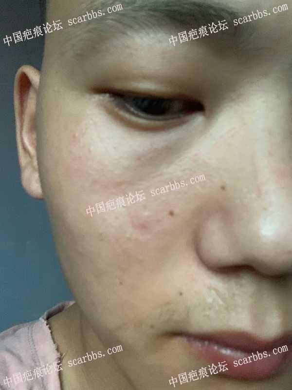 面部疤痕麻烦医生看一下
