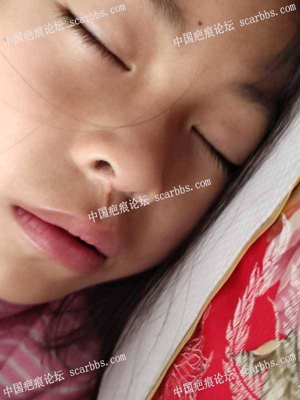 小孩鼻子下面疤痕,去广州中山医院找哪位专家?