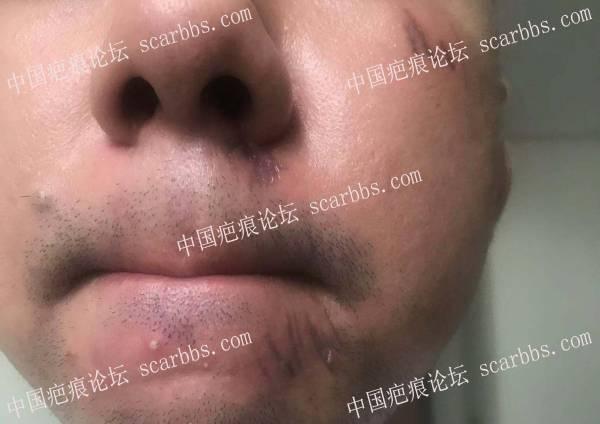 请问下鼻子下面怎么修复  黑色的线条怎么办 已经都愈合了