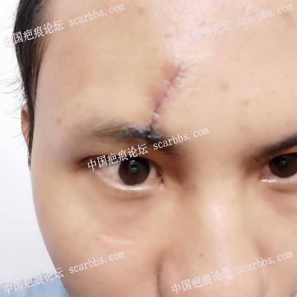 额头凹陷疤痕去三甲医院做了切除