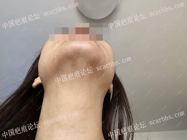 辽宁张女士下颌点痣半年增生疤痕治疗案例